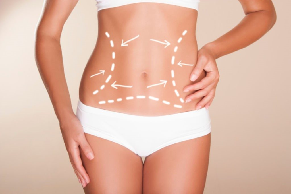 lipoaspiration Tunisie